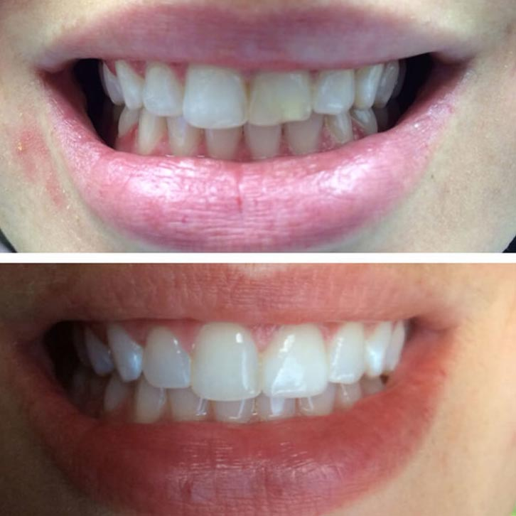 before and after photos of teeth that were chipped and are now repaired