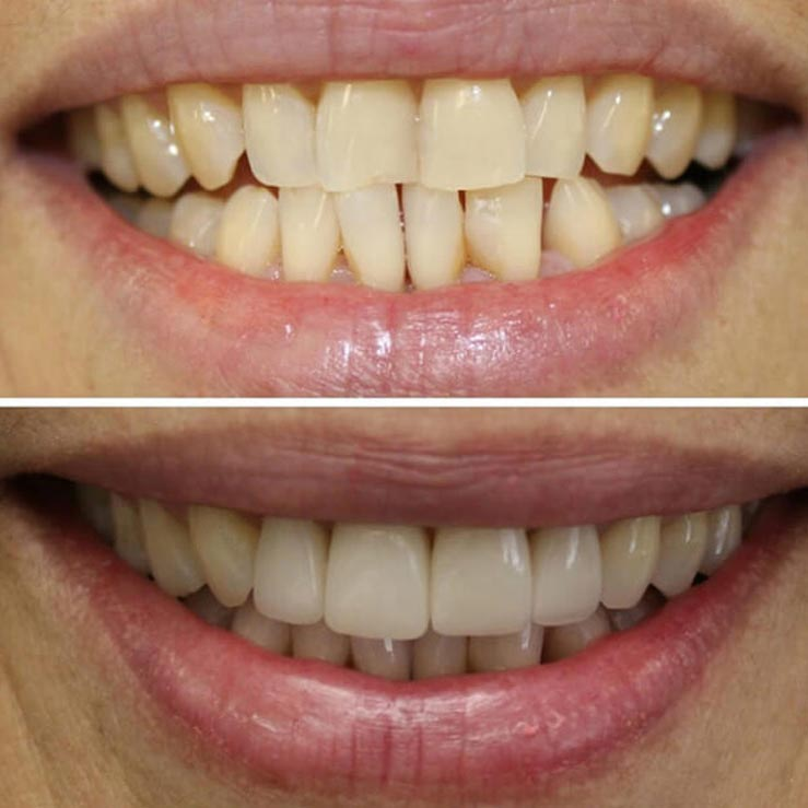 before and after photos of crooked teeth that are now straight