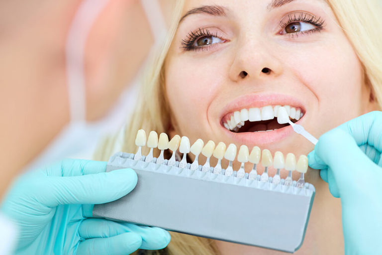 An unseen dentist holds up a teeth whitening chart next to a woman's mouth to compare tooth shades